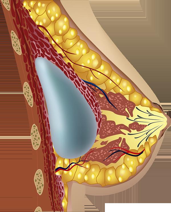 Prótesis implantada bajo el músculo