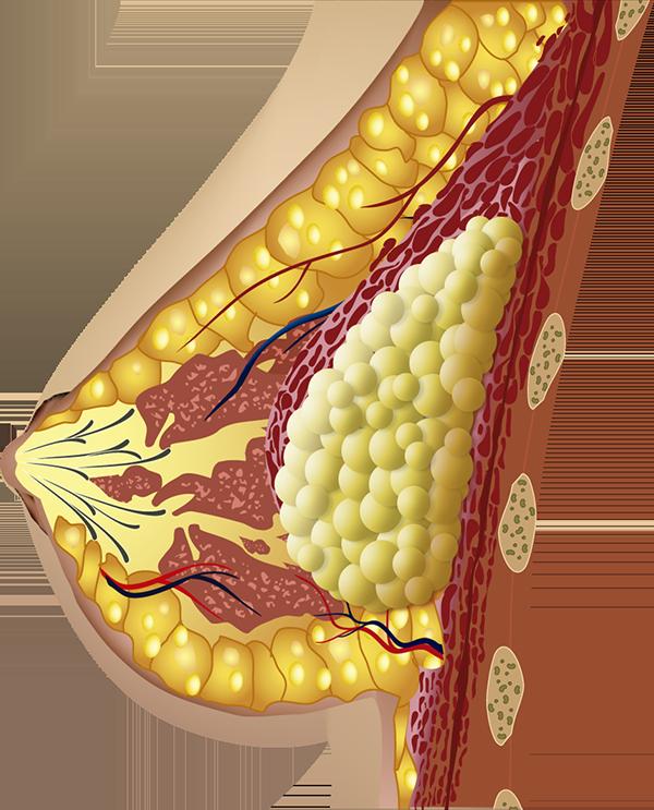 Aumento de pecho con grasa del propio paciente