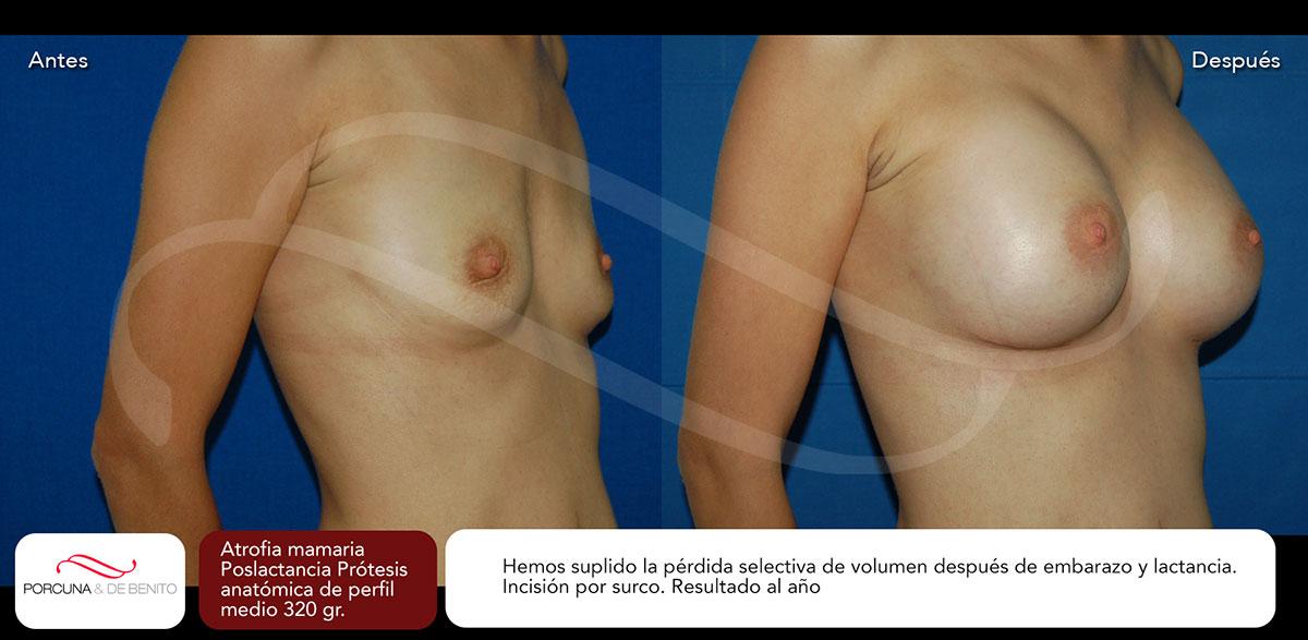 Atrofia Mamaria Poslactancia, Prótesis anatómica de perfil medio 320 gr.