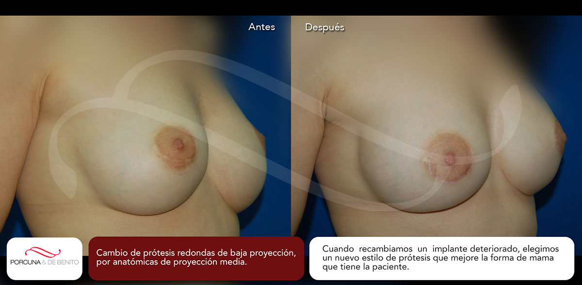 Cambio de prótesis redondas de baja proyección, por anatómicas de proyección media.