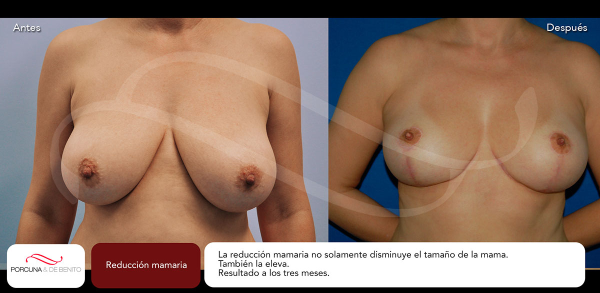 Reducción mamaria